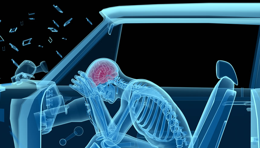Chiropractic accident care